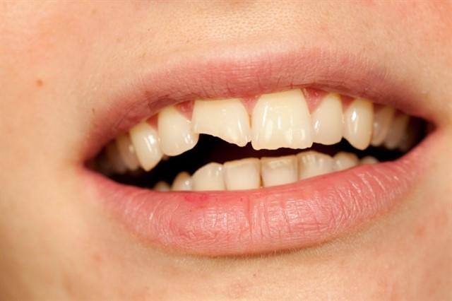 ¿Qué hacer en caso de traumatismo dentale?