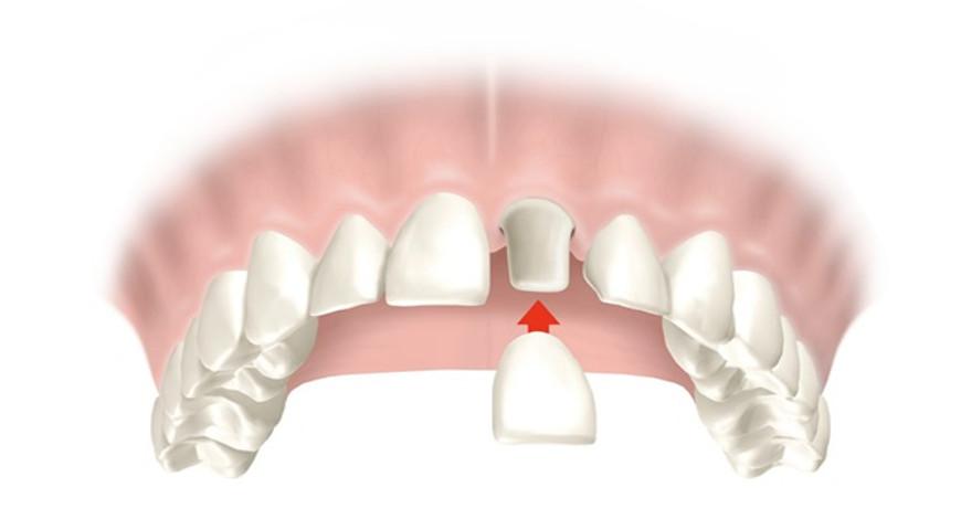 Coronas dentales: tipos, cuidados, precios