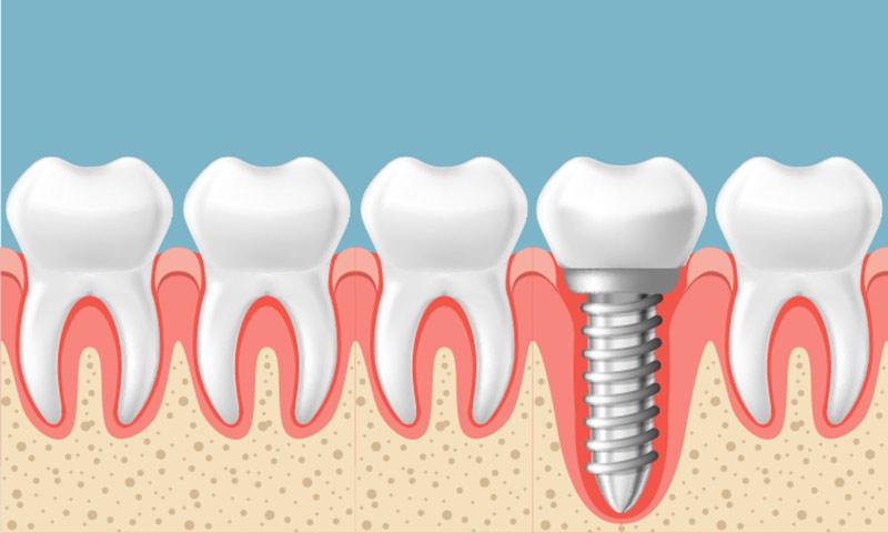 Los implantes dentales para una sonrisa sana y hermosa
