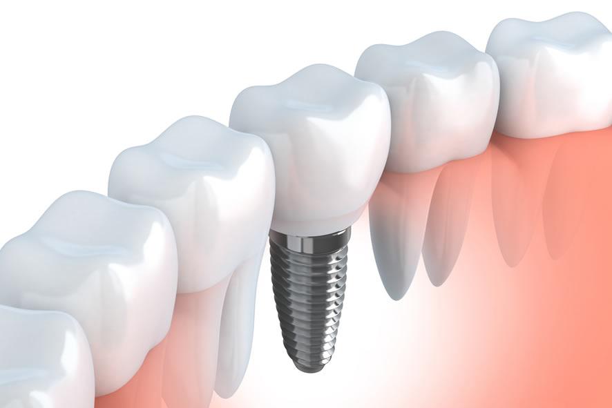 La implantología ofrece la posibilidad de disfrutar de una nueva dentición
