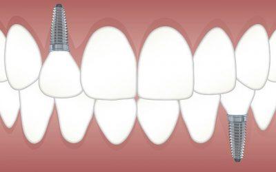 Razones por las que los implantes dentales triunfan en España